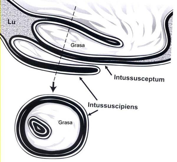Diagnóstico y Tratamiento de una Intususcepción ileocecal
